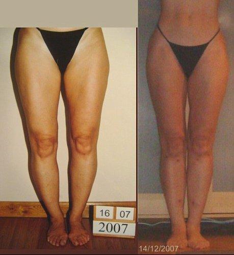 comment avoir les jambes arquees