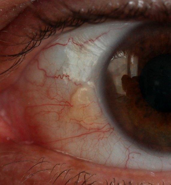 Boule dans l 39 oeil carabiens le forum for Interieur yeux rouge