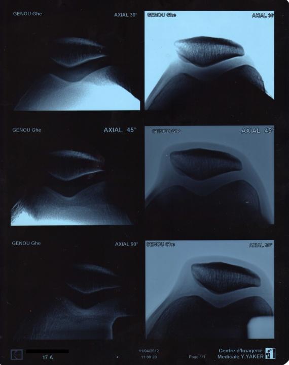 Douleur au genou en montant les escaliers 28 images for Douleur au genou gauche interieur