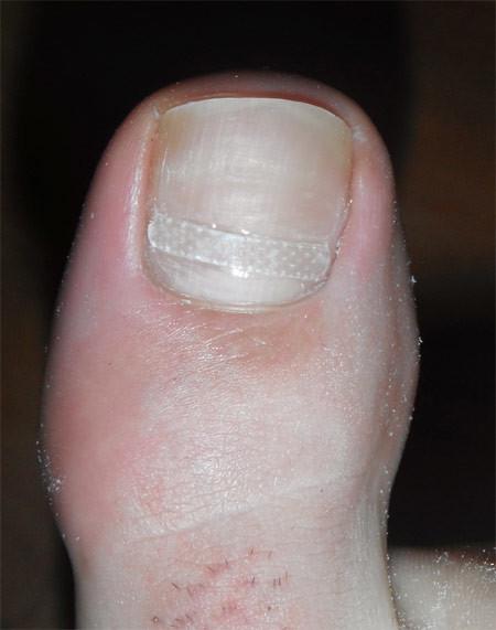 Le traitement des ongles à bras la clinique