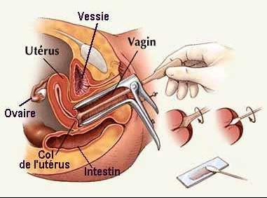 prevention_uterus_frottis
