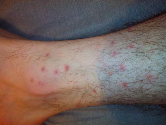 plein de bouton rouge sur les jambes votre avis acn acn psoriasis et probl mes de peau. Black Bedroom Furniture Sets. Home Design Ideas