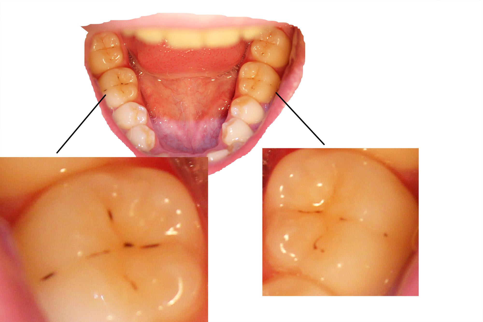 Petits Points Noirs Dent Problèmes Dentaires Forum Santé