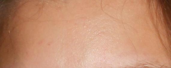 La crème blanchissant les rappels kosmetista