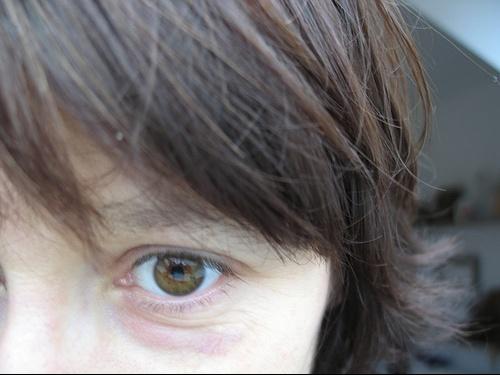 Toxine botulique sur le contour des yeux : effets