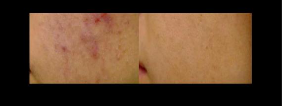 acné résorbé en quelques jours