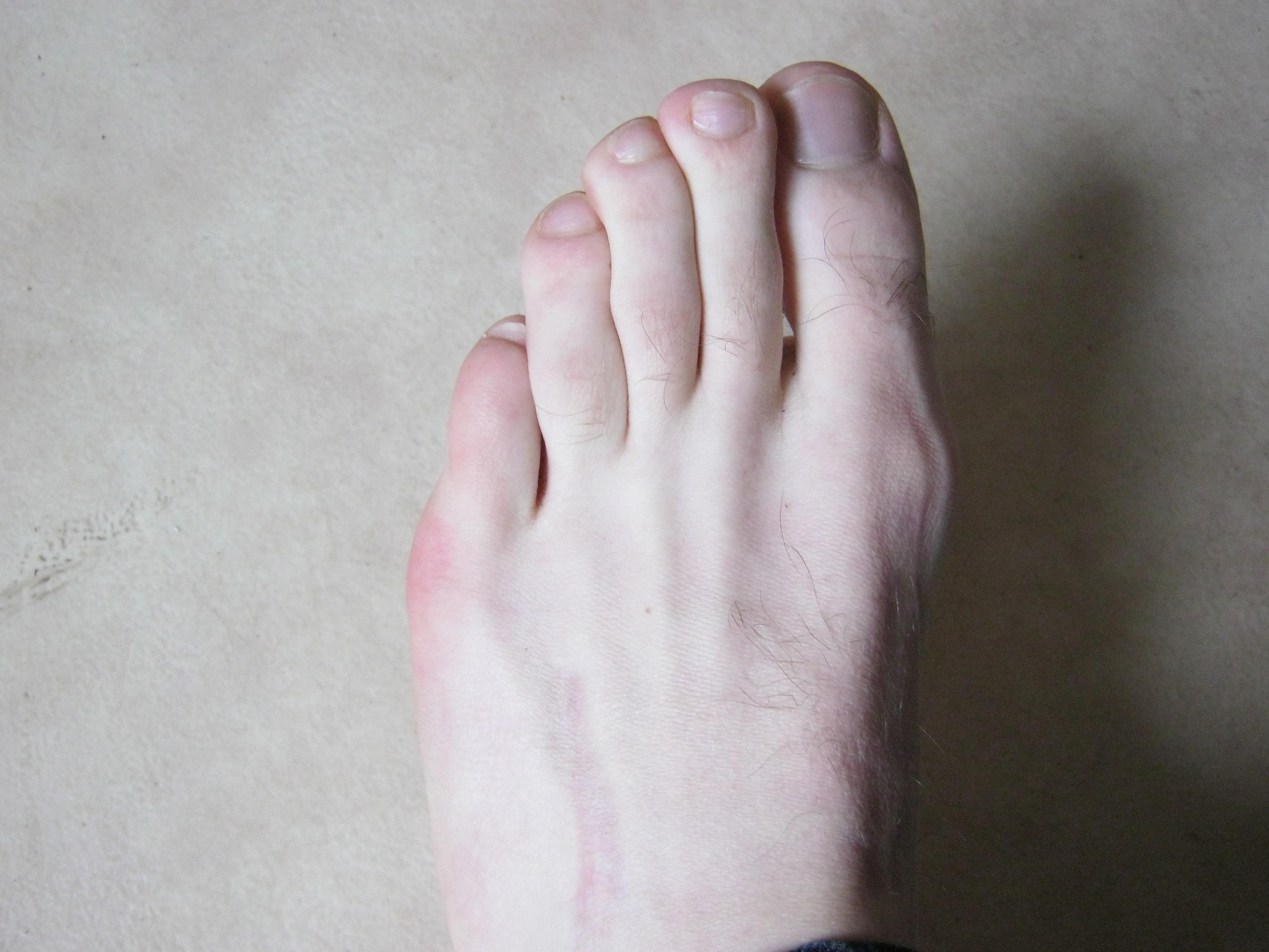 os de pied qui ressort