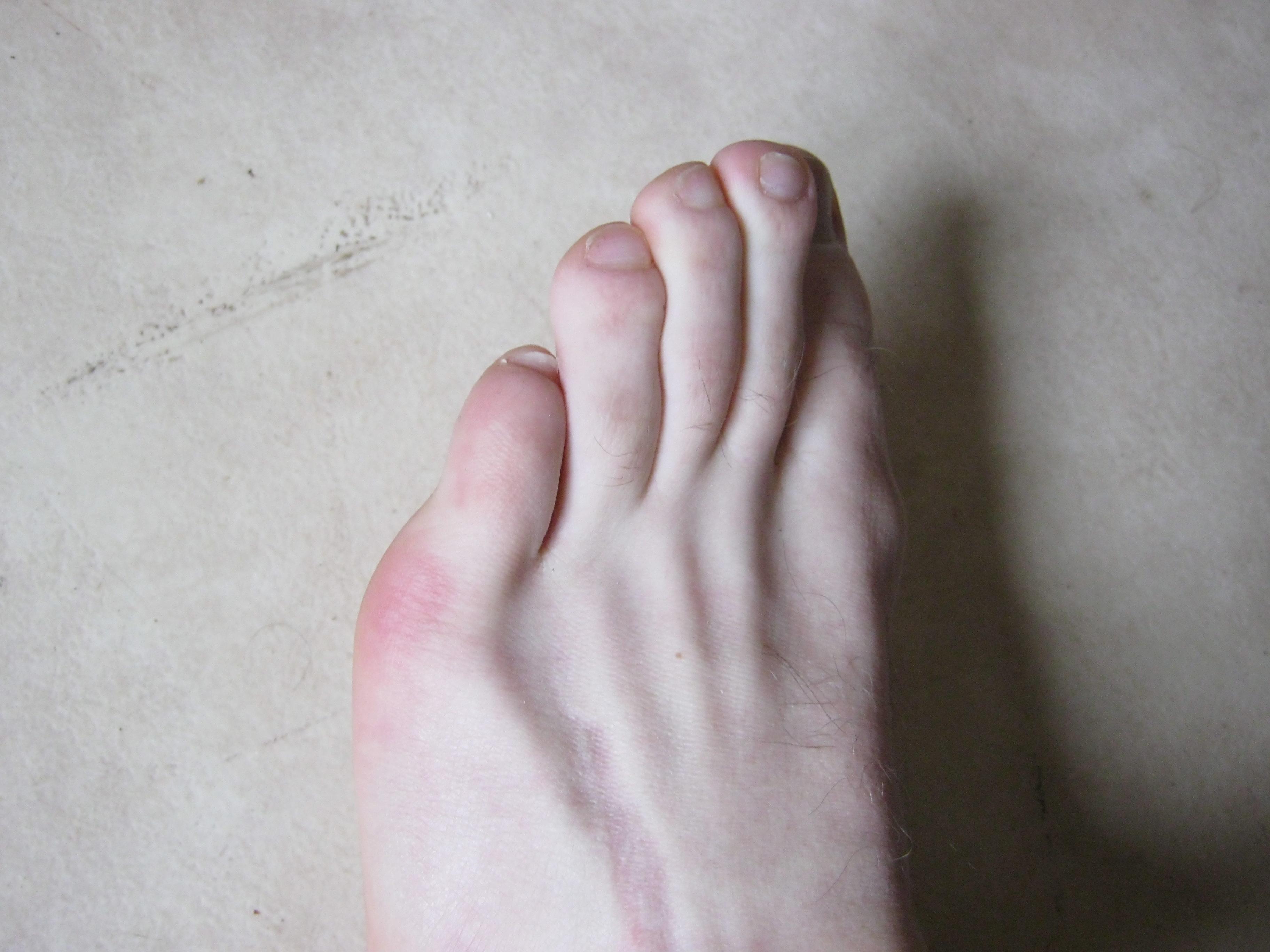 mal au doigt de pied que faire
