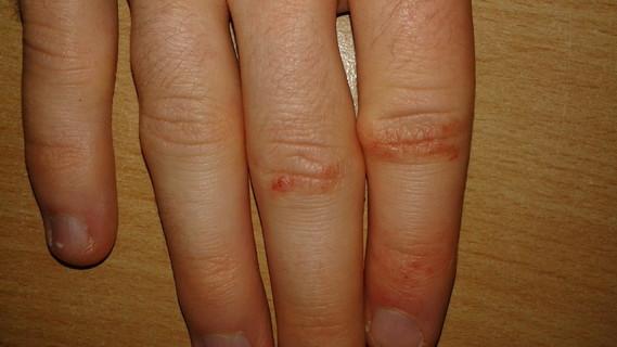 La maladie le psoriasis de pour quoi