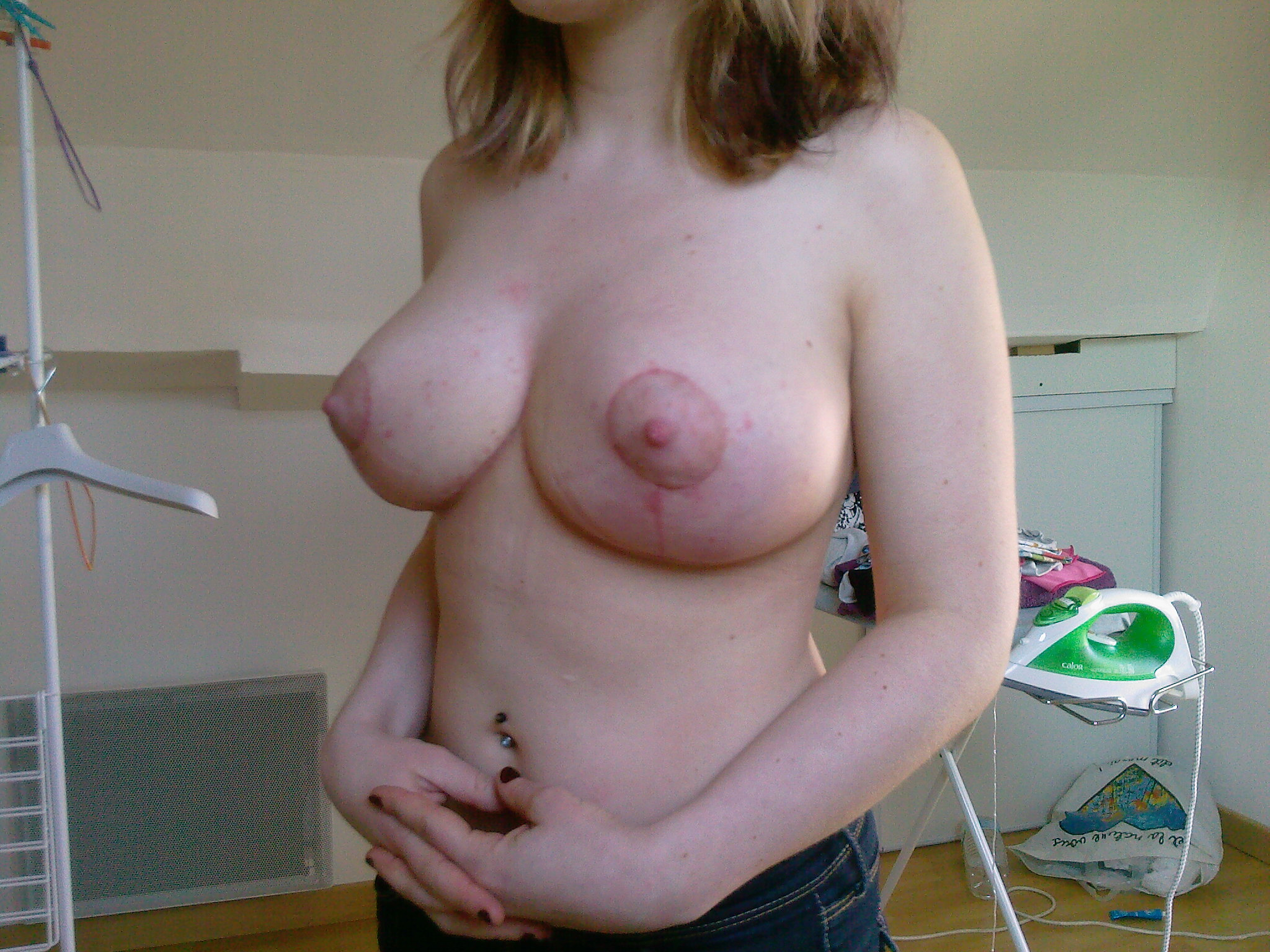 reduction-mammaire-25-4-gauche-big