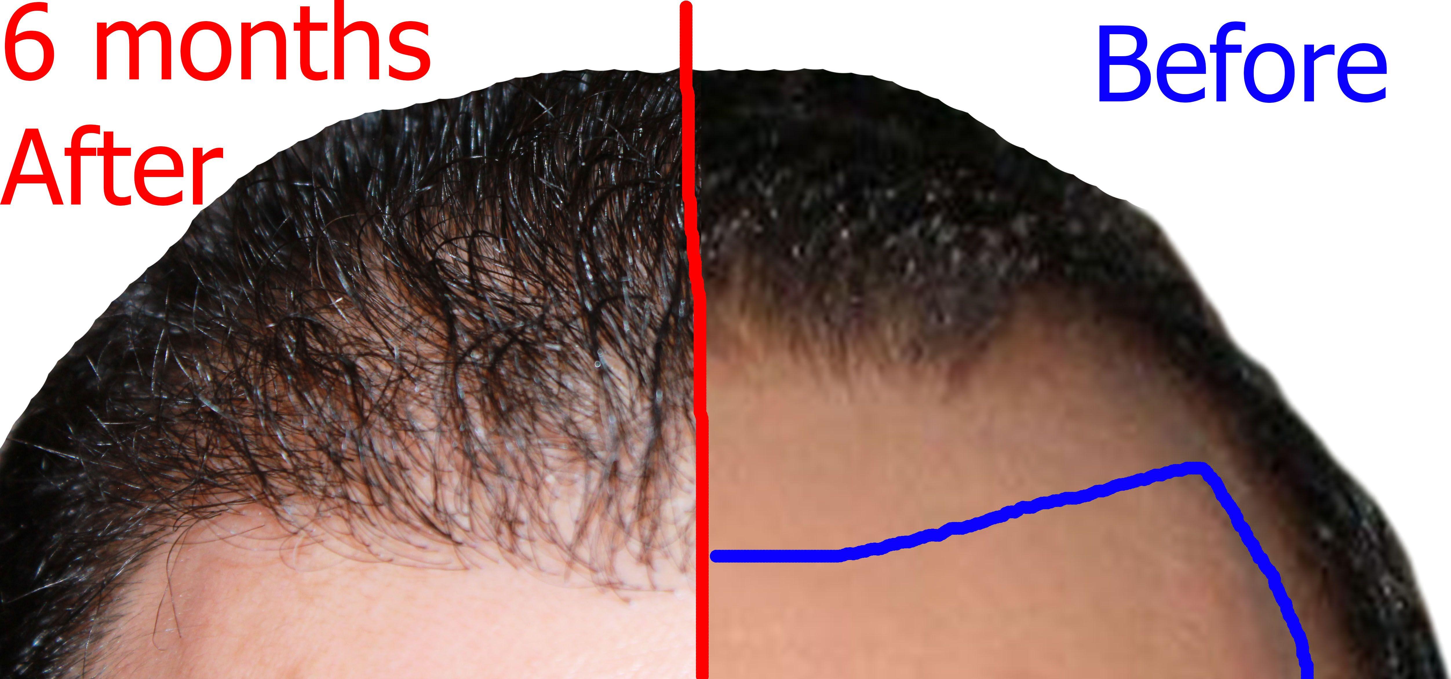 Combien poussent les cheveux par mois