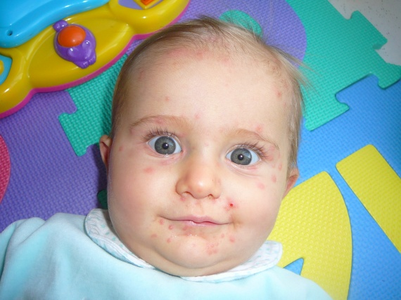 8 mois et 21 jours la varicelle 003
