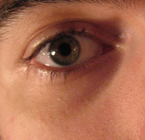 La crème sous les yeux enlever les sacs sous les yeux