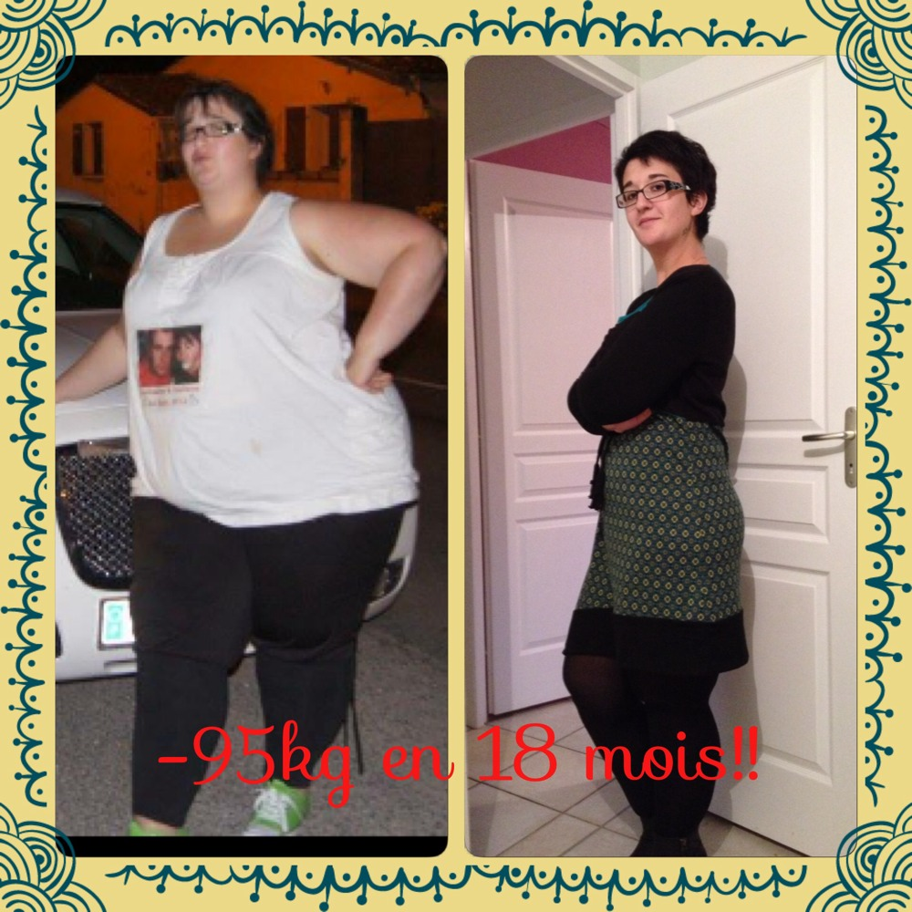 Plus de perte de poids depuis 1 ans de sleeve - Chirurgie