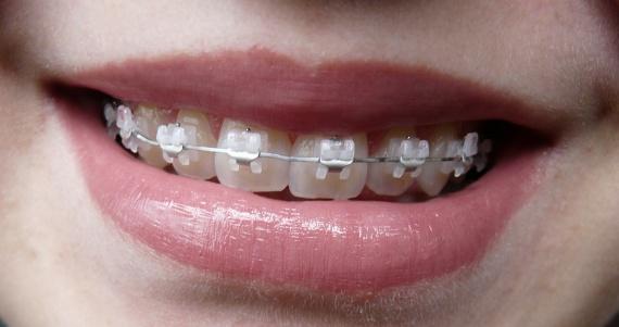 orthodontie c ramique pos e page 6 beaut des dents forum beaut. Black Bedroom Furniture Sets. Home Design Ideas