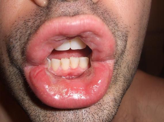 Quelles piqûres on peut piquer du psoriasis