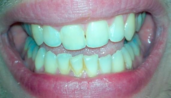 dents1