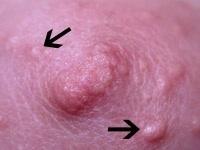 tubercule%20Montgomery[1]