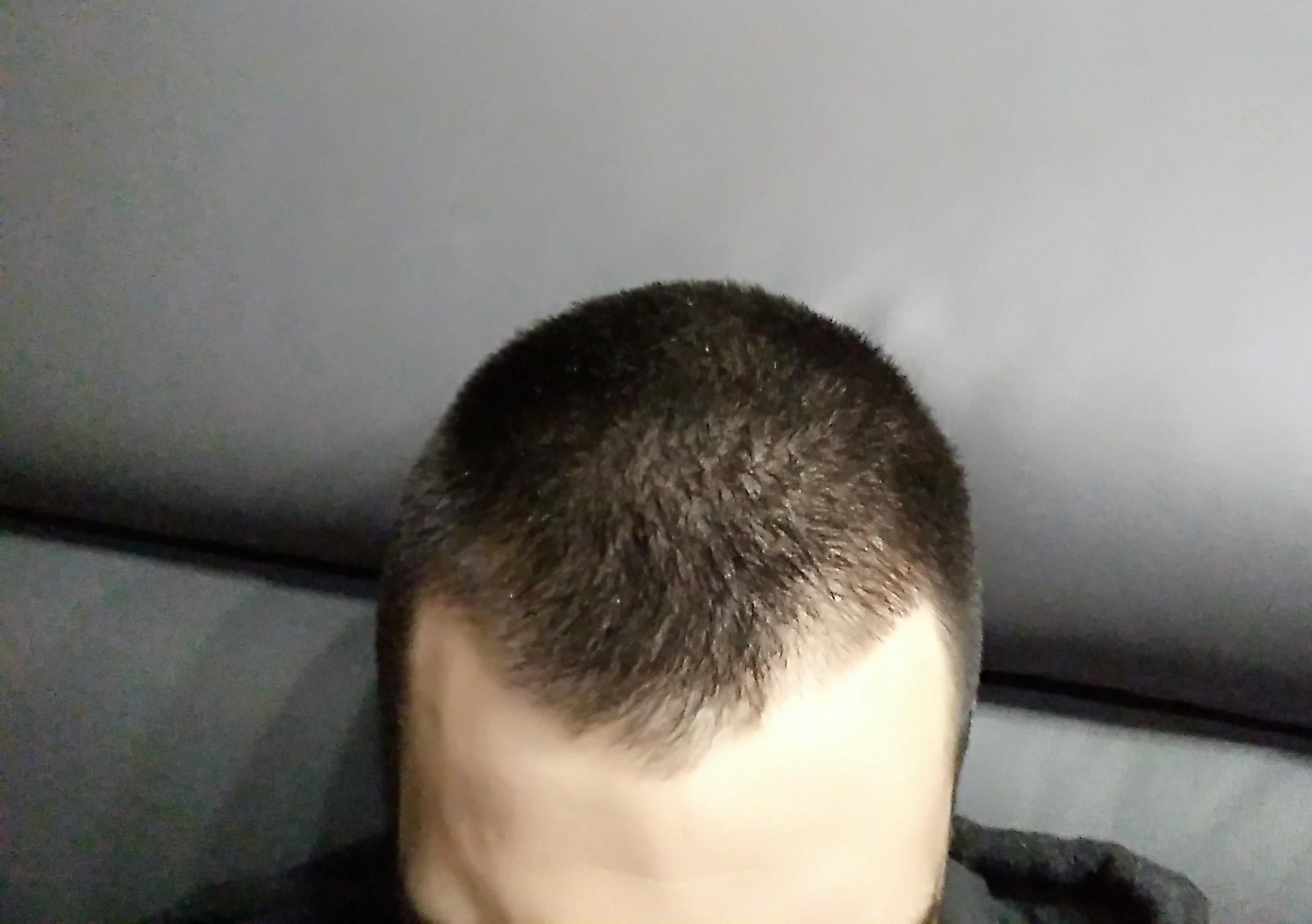 Début de calvitie ? - Calvitie et perte de cheveux - FORUM Santé