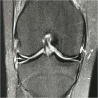 IRM genou coupe frontale en DP