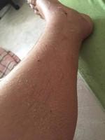 Etat de la jambe après retrait du plâtre