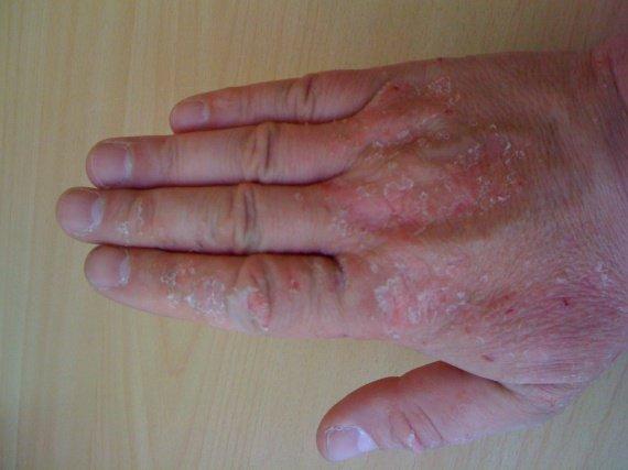 Le nettoyage pour le traitement du psoriasis