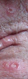 bouton partie genitale femme