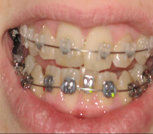 Orthodontie plaquettes ceramiques metal photos probl mes for Bagues dentaires interieur
