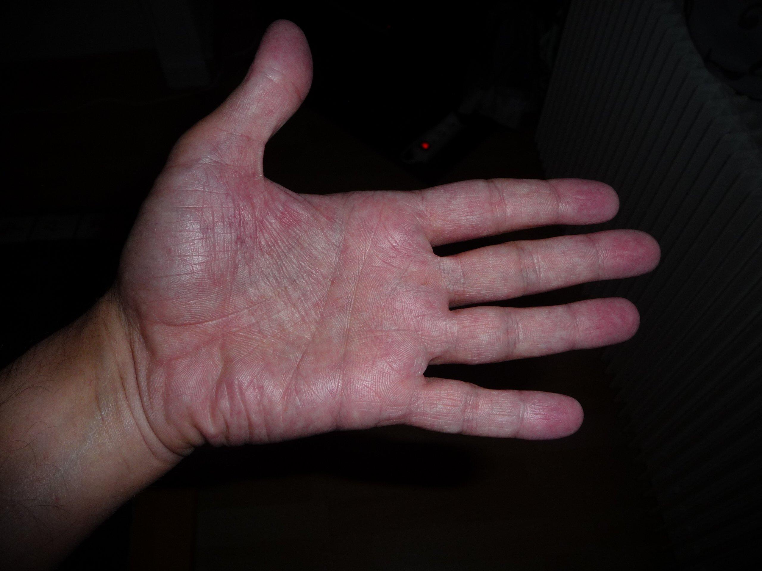 mains et pieds rouges