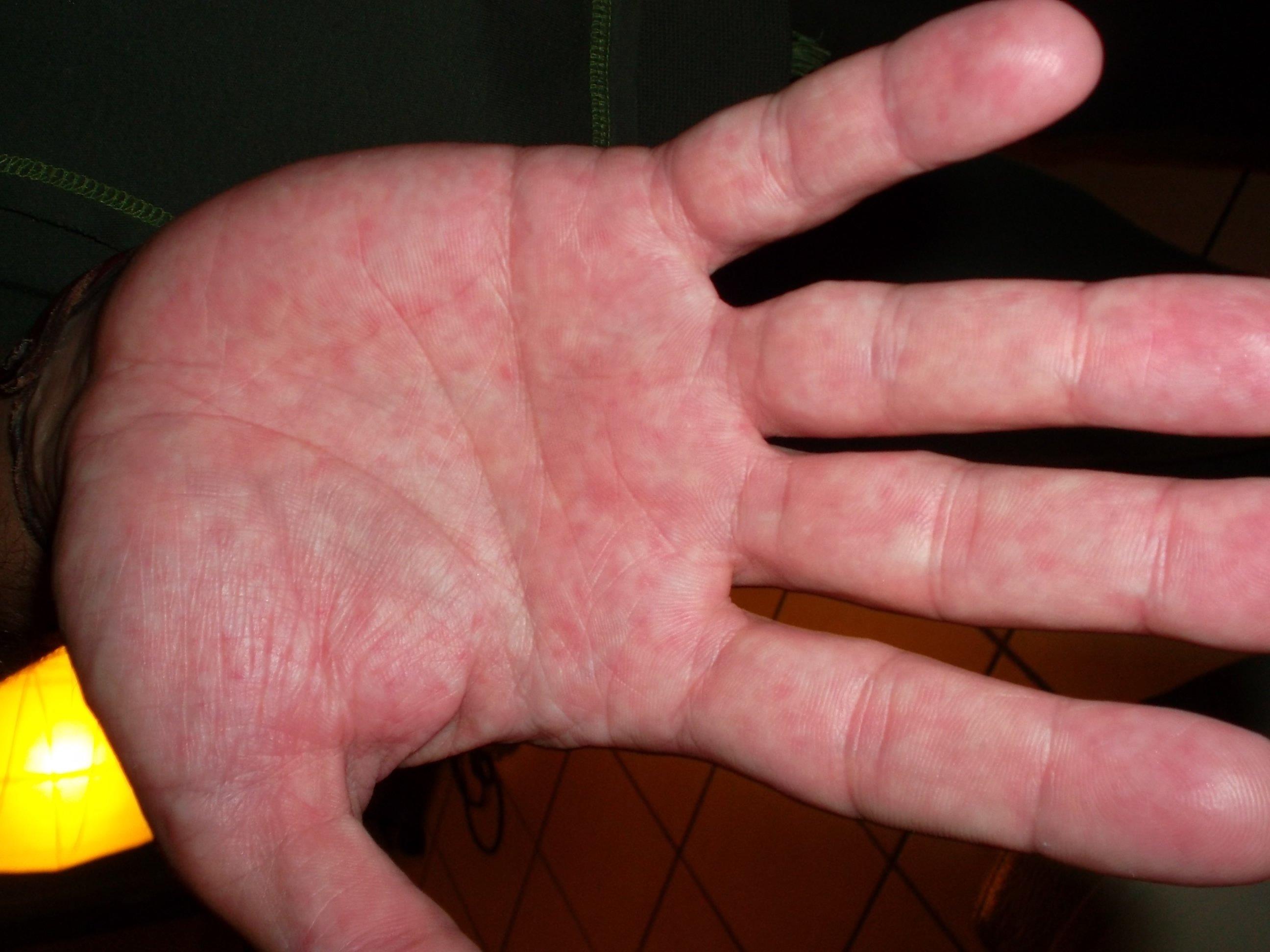 On peut utiliser asd sur le psoriasis