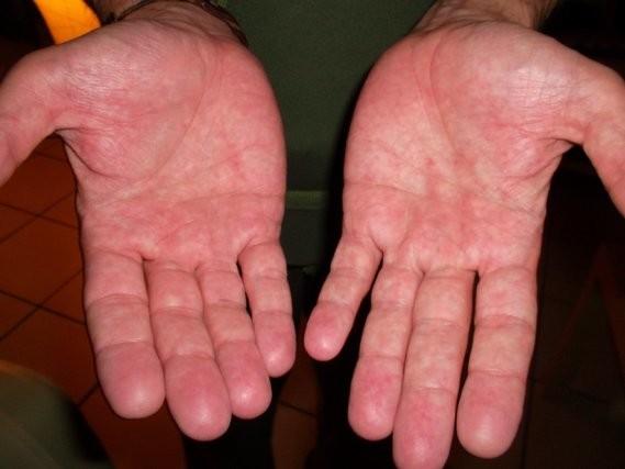 Le psoriasis sur le pied de la photo le traitement