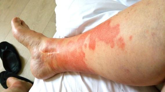 jambe droiteweb