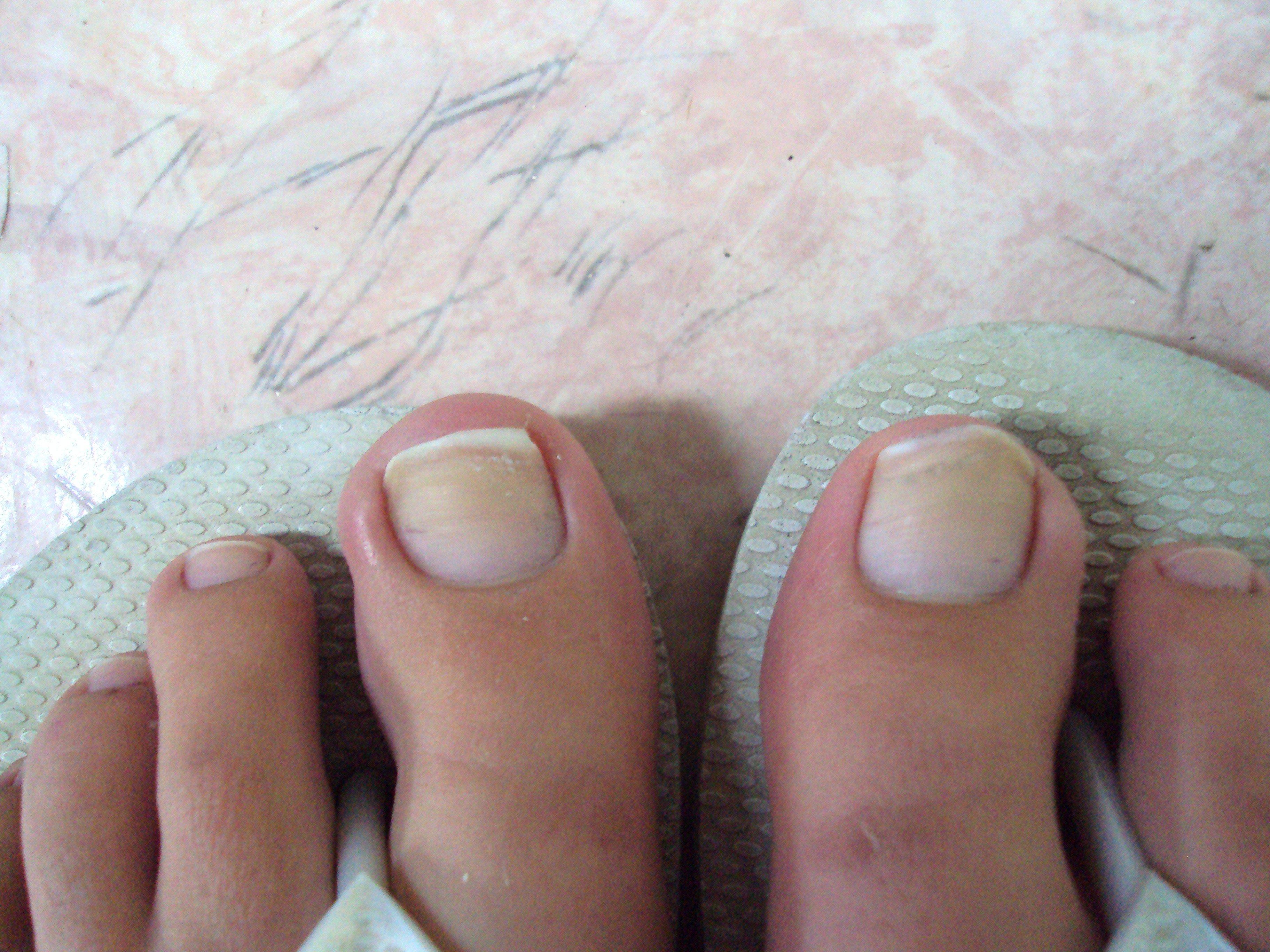 ongles jaunes pieds