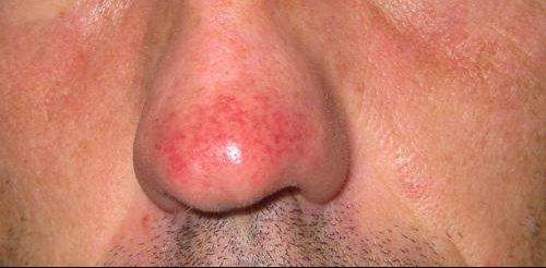 Le psoriasis sur la tête que traiter les maisons