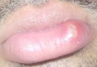 ulcere levre
