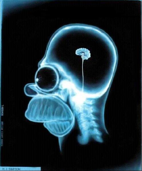 simpson-brain