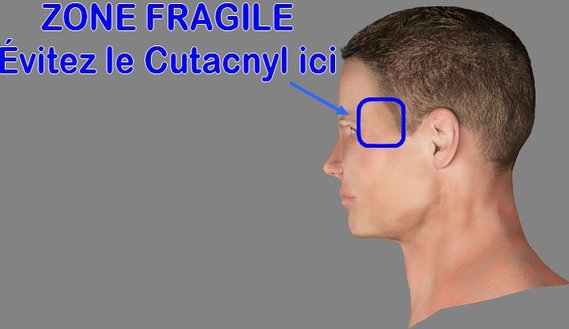 Cutacnyl - Zone fragile
