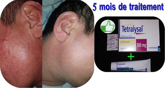 Tétralysal + Cutacnyl - Avant Après