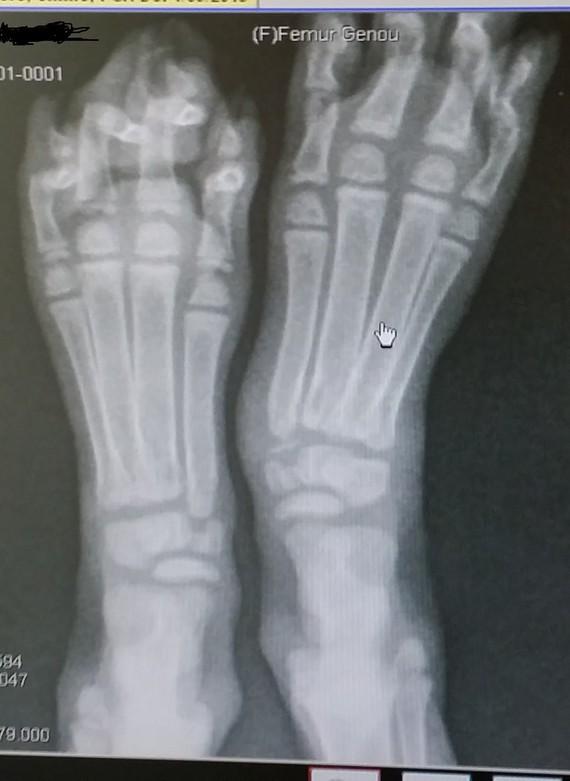 où qu'elle est ma fracture ?? ;)