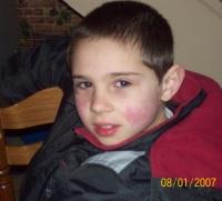 Cédric et son allergie au visage (urticaire)