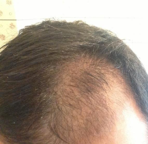 Mon Expérience Minoxidil 5% - Calvitie et perte de cheveux