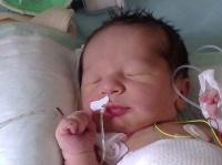 Bébé omphalocele04012011160