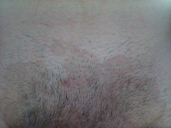 Que traiter vitiligo et le psoriasis