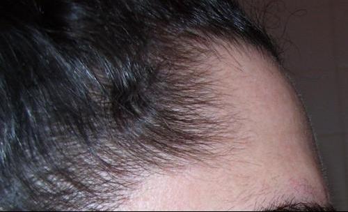 Dutastéride Cheveux : Reminyl Lp