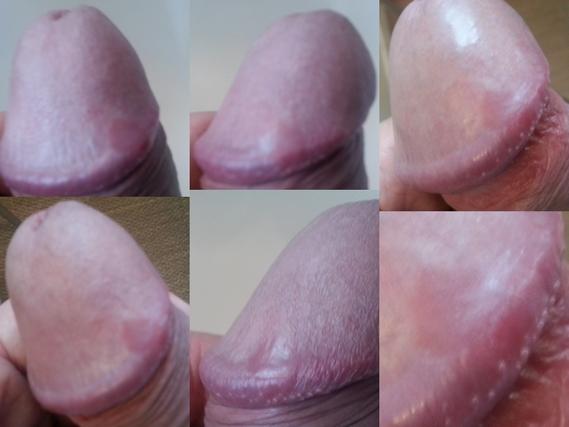 plaque rouge sur le gland