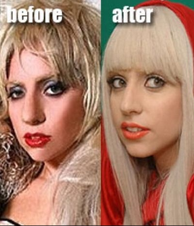 lady_gaga_nose_0_0_0x0_400x465