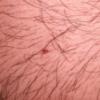 Angiome ou tache rubis peur cancer