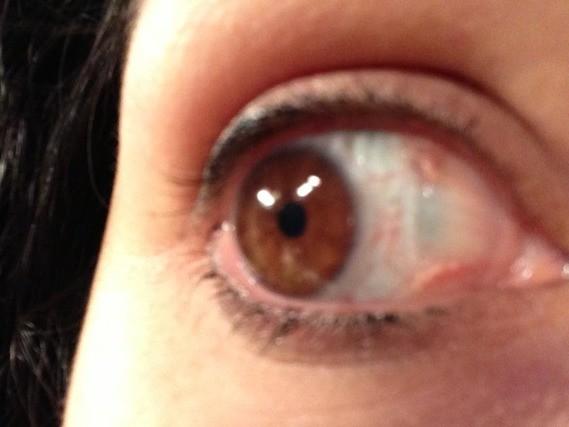 Drainage lymphatique du visage faire sur soi for Interieur yeux